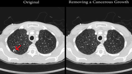PACS images altered to add or remove a tumor